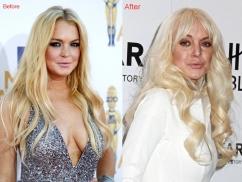 Lindsay-Lohan-botox